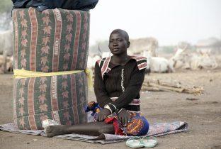 ondervoeding oost afrika